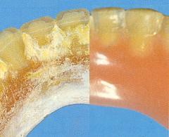 L'entretien des prothèses dentaires