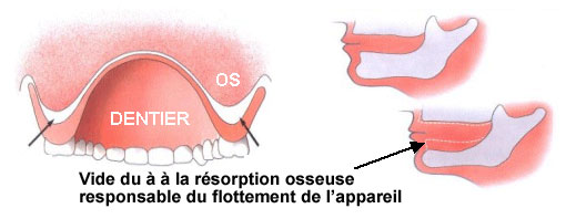 resorption (1)